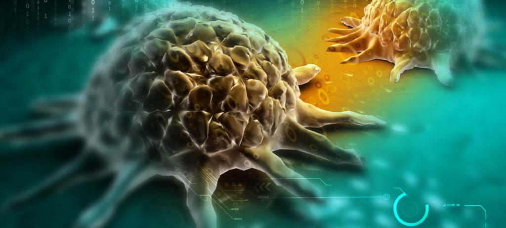 Responsabilità professionale sanitaria per omessa diagnosi di tumore maligno